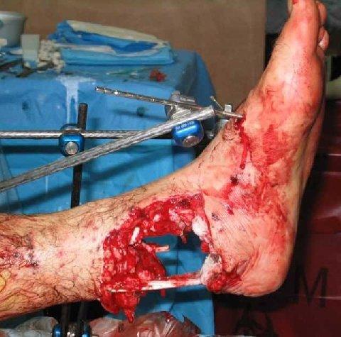 blessure d'un ours polaire pied